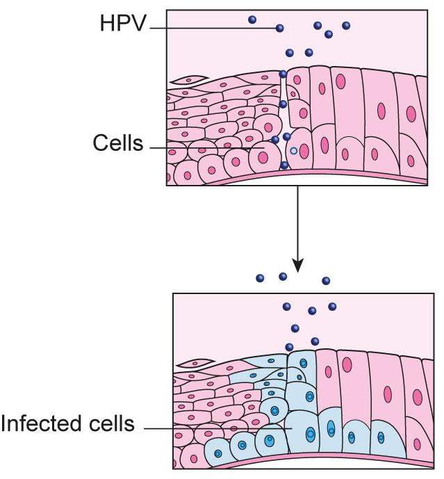 papilloma virus vaccino in europa infecții cu helmint a