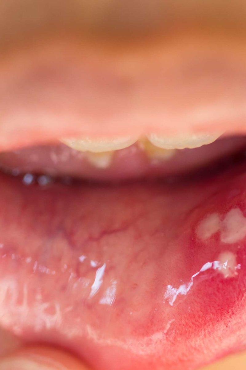 papilloma tongue removal