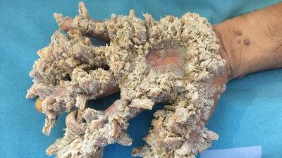 define human papillomavirus fonduri de viermi anual