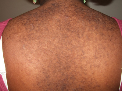 causes of confluent and reticulated papillomatosis