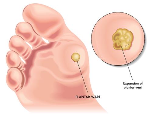 wart treatment on foot cancer bucal y de garganta
