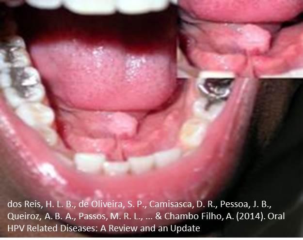 papillomavirus mouth