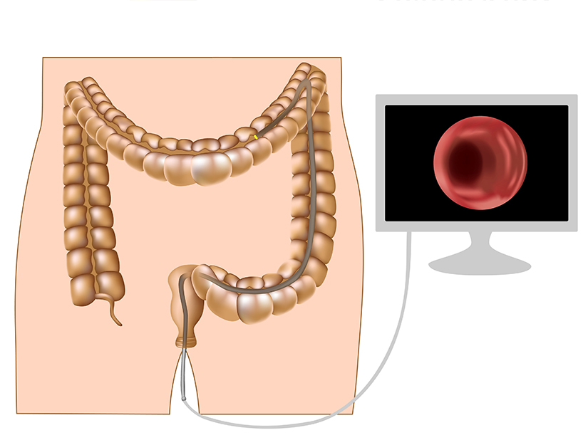 cancerul se poate vindeca cancerul gastric investigatii