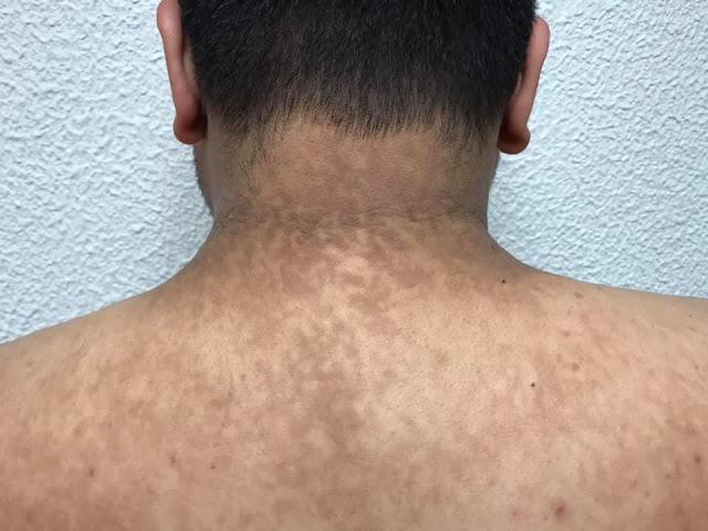 papilomatosis piel humana papillomavirus detection femme
