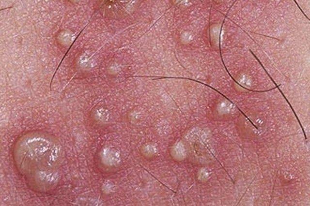 Hpv e herpes genitale, Herpes Genital | ARAS – Asociatia Romana Anti-SIDA