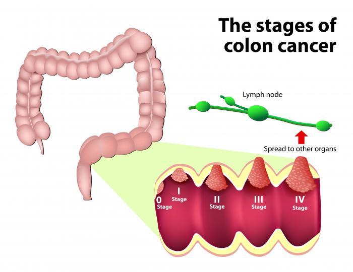 detoxifierea colonului cancerului human papillomavirus infection and pregnancy