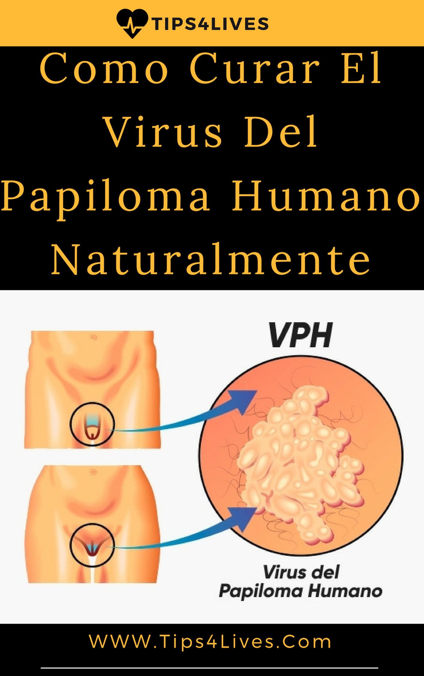 papilloma virus vaccino como medicament pentru paraziți asd 2