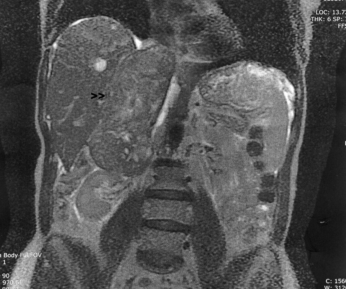 sarcoma cancer fibroids