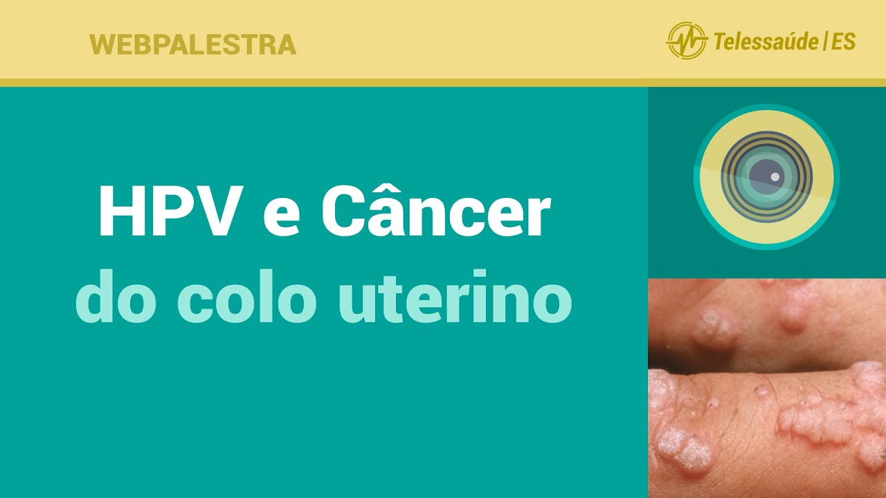 Cancer de colo de utero causado por hpv. Category: DEFAULT