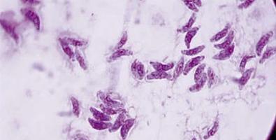cât durează perioada de incubație a toxoplasmozei transitional cell papilloma of the urinary bladder