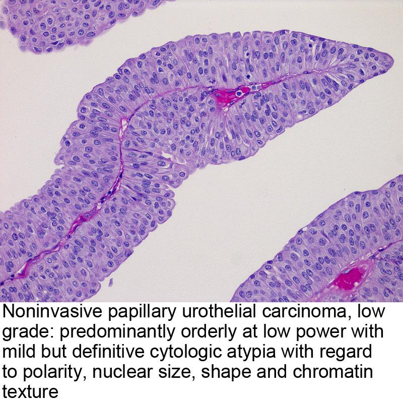 virus del papiloma bucal wart on foot pulsing