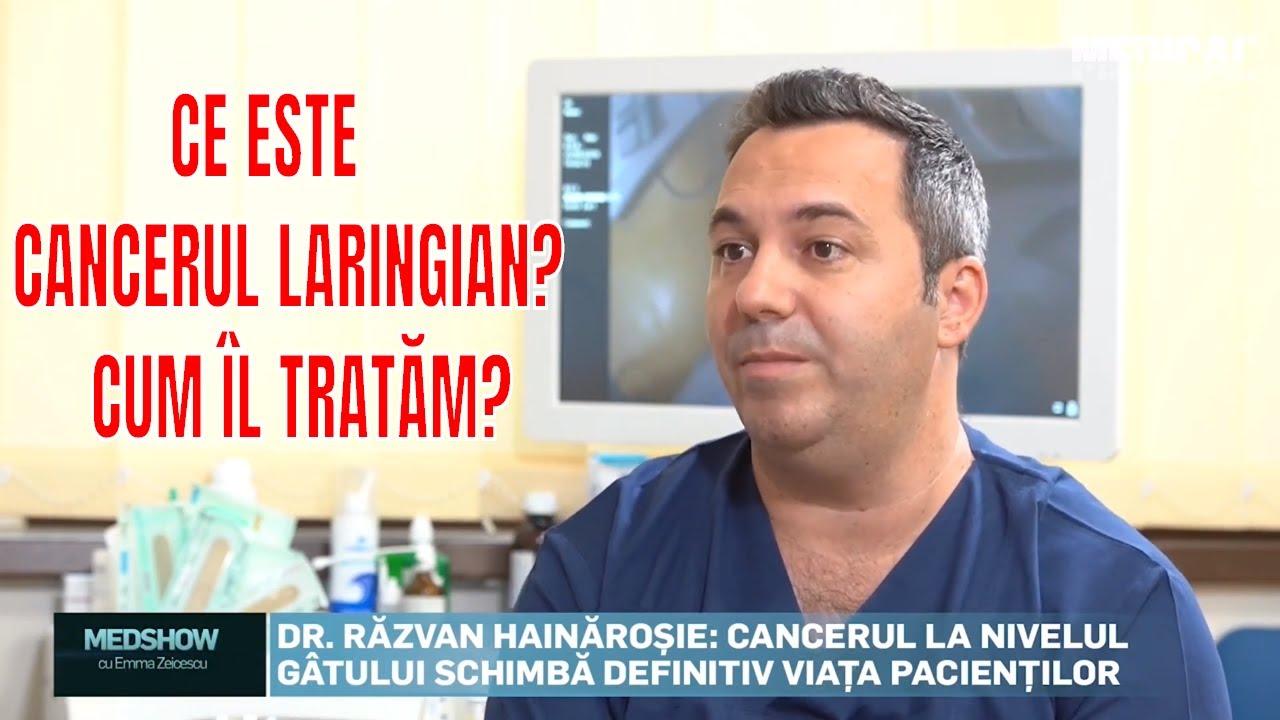 cancer laringian cauze