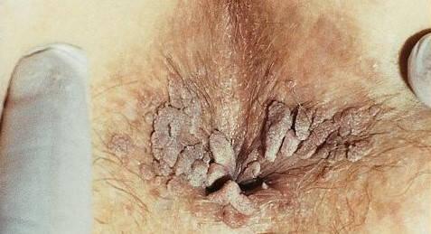 human papillomavirus hpv vaccine( cervarix) sistemul limfatic detoxifiere