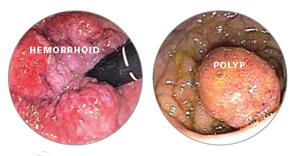 infeccion por oxiuros agente infeccioso hpv virus terapija