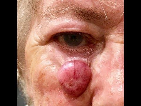 Human papillomavirus kezelese. Warts under foot causes