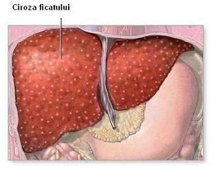 cancer hepatic metastaza
