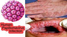 Human papillomavirus infection symptoms male, Vă recomandăm urmatoarele stiri din aceeasi categorie