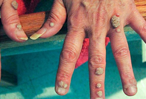 warts on hands that come and go