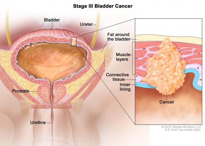 Sperante noi pentru cancerul de vezica urinara   Medlife