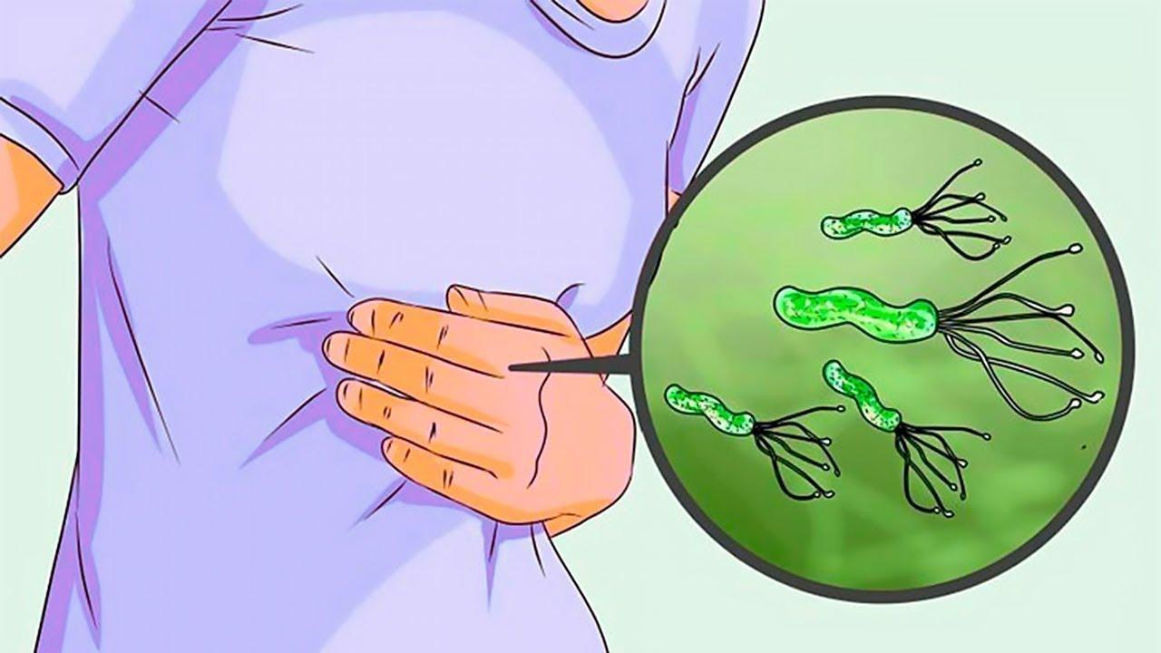 leishmaniaza paraziți protozoici