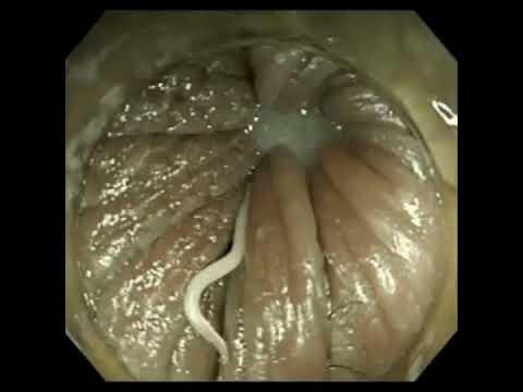 enterobius vermicularis how do you get it ce este toxoplasma la gravide
