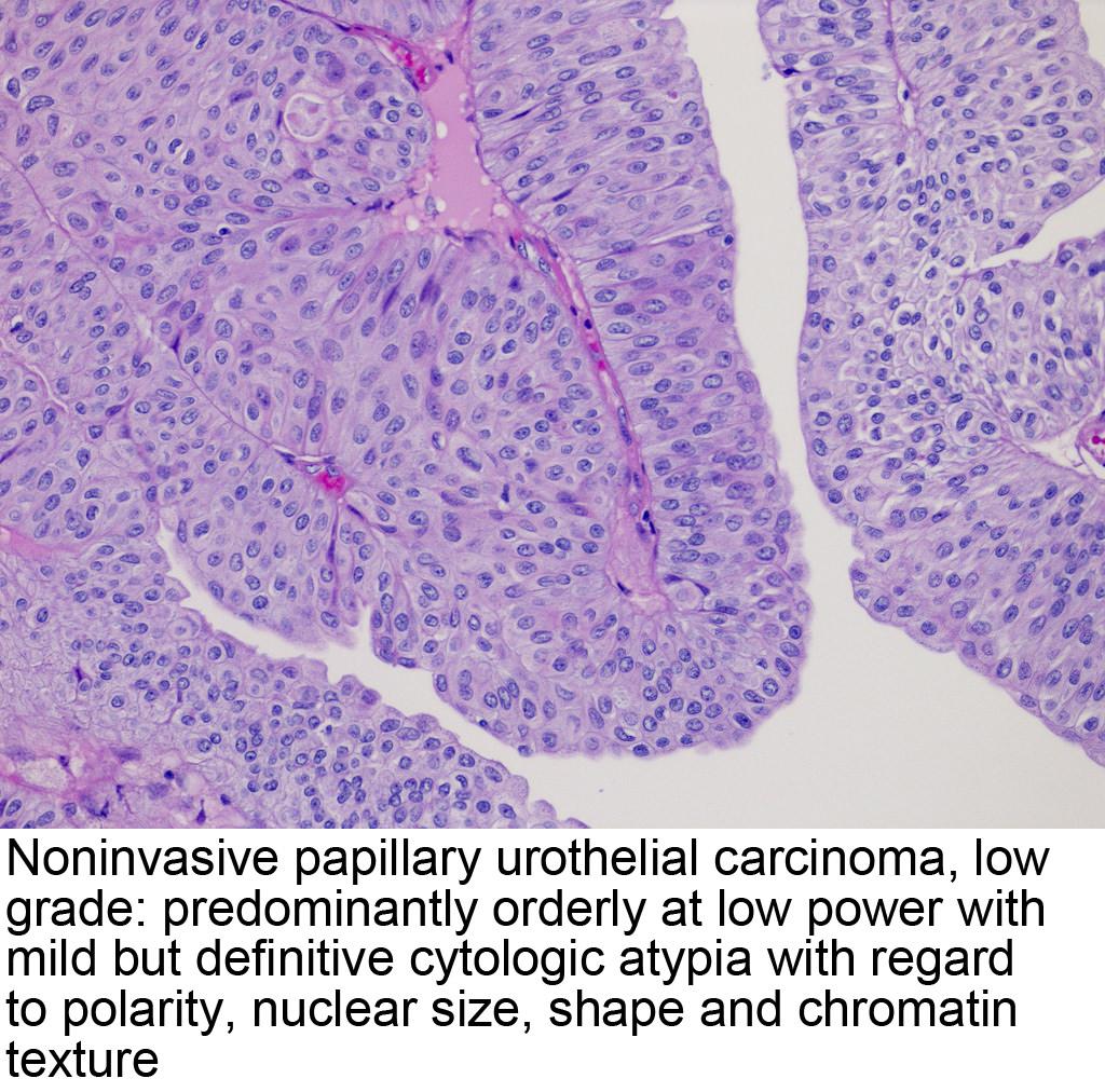 papillary urothelial neoplasm treatment