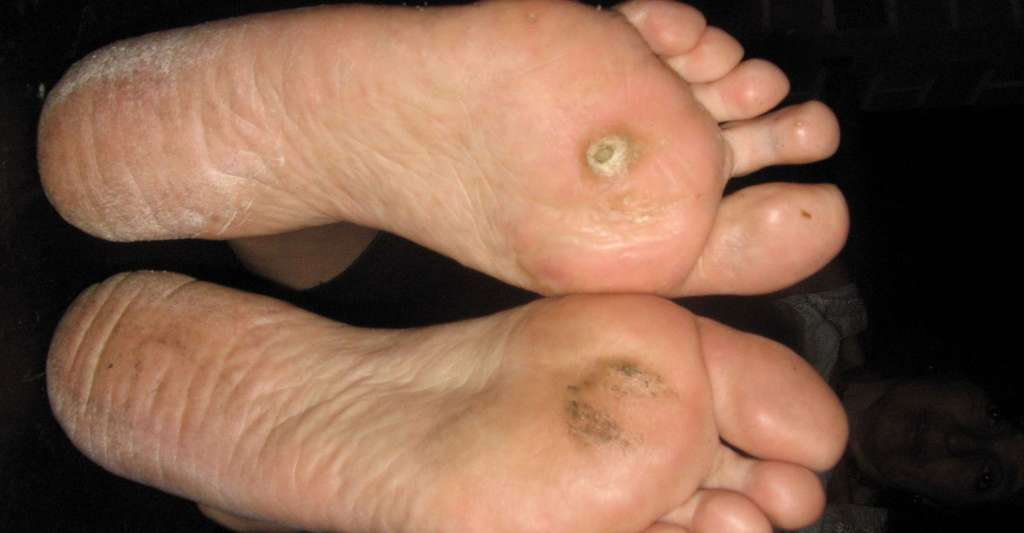 hiv and liver cancer tratamentul paraziților pielii la om