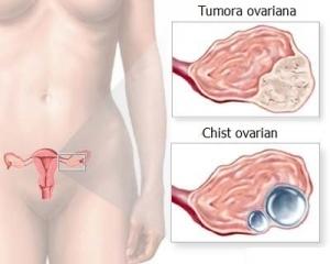 simptome cancerul ovarian