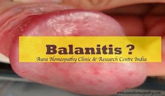 Hpv herpes genitalis. Cancer de piele la picior