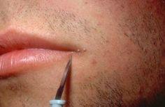 hpv on lip line detoxifiere emotionala