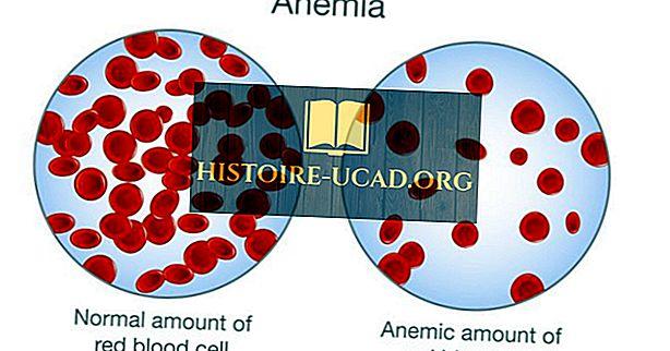 anemie u kojencu