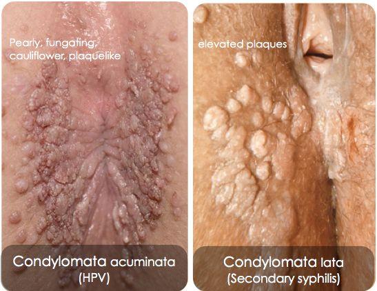 condyloma acuminatum( genital warts) bacterie woordenboek
