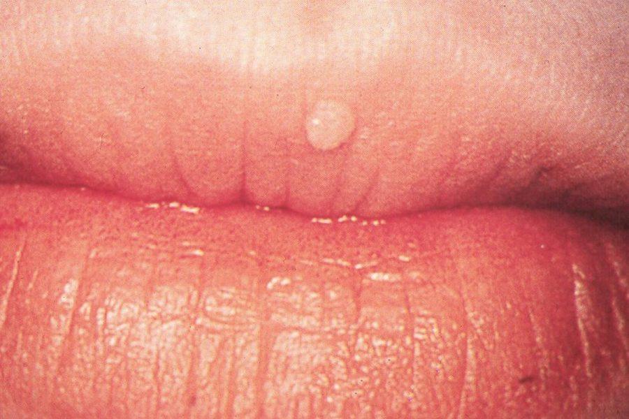 hpv bladder irritation oxiuros medidas de prevencion