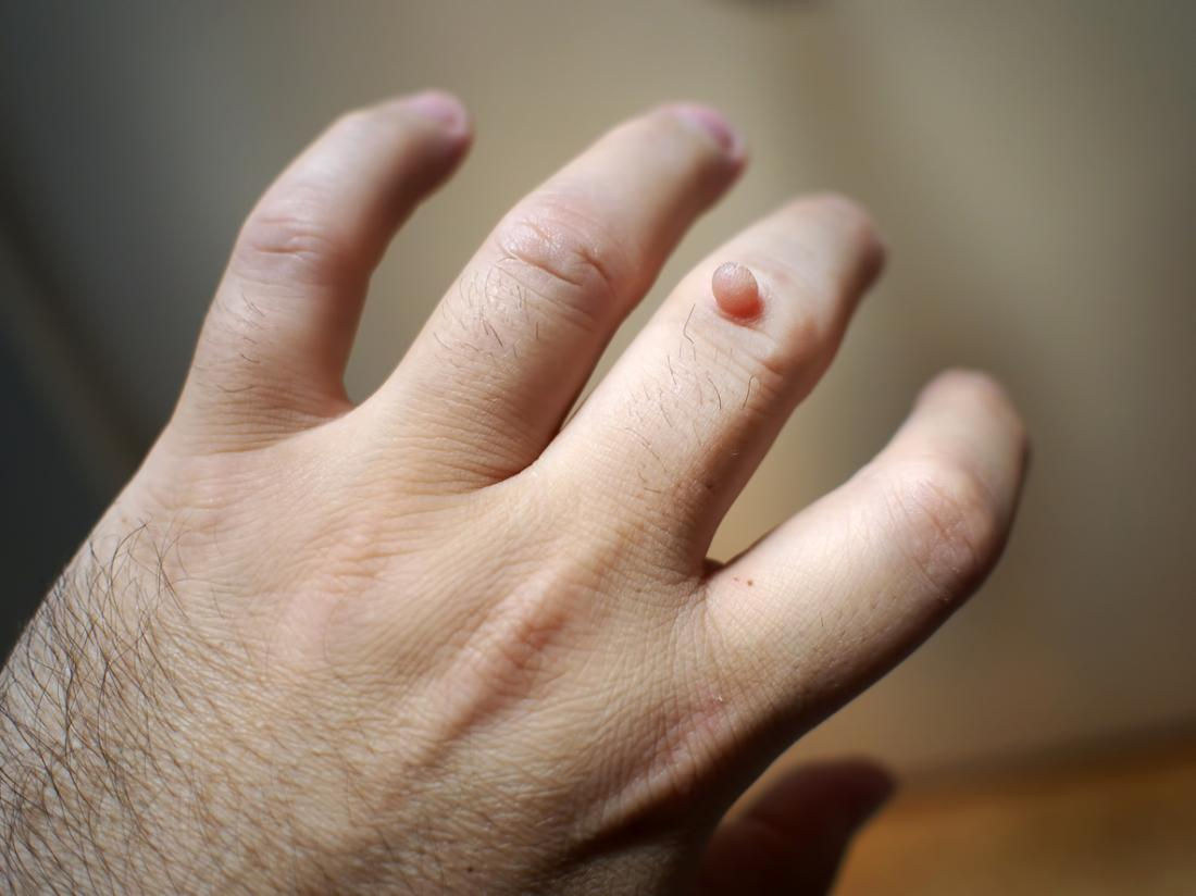 Warts on hands with black spots