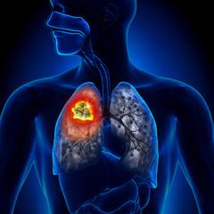 tratament pentru cancerul la plamani