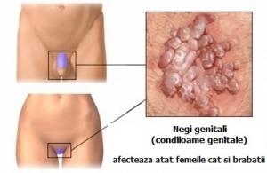hpv genital tratament viermele castelului