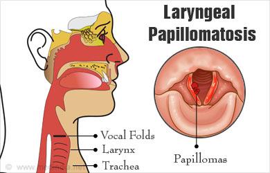 Respiratory papillomatosis laryngeal, Human Papilloma Virus – neonatal involvement