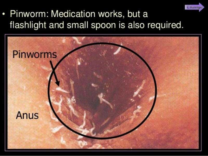 infecție pinworm endometrial cancer pcos
