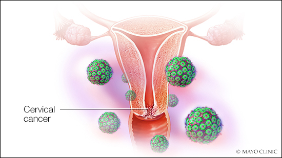 cancer from hpv