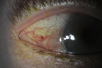 conjunctival papilloma prognosis
