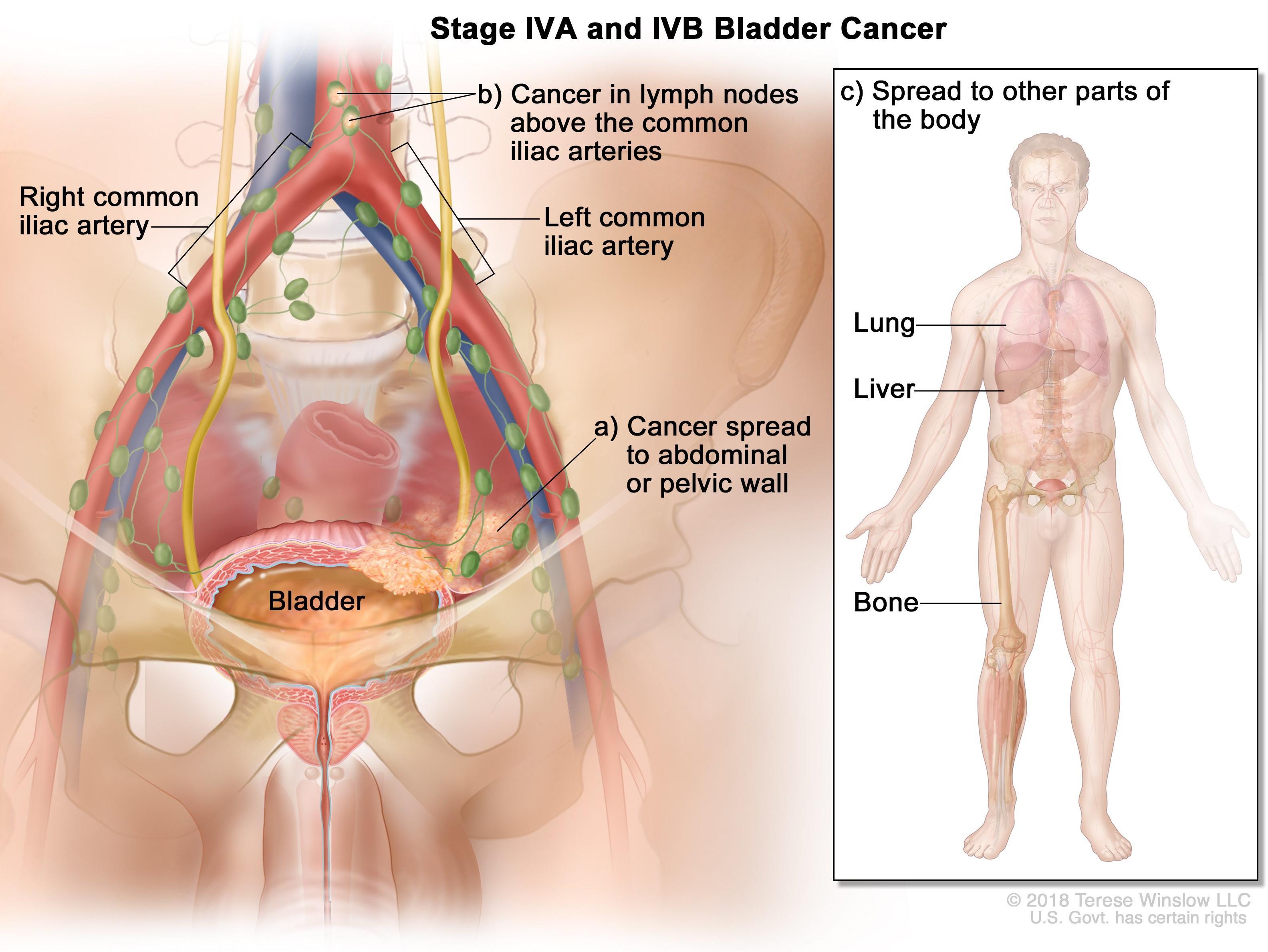 Bladder Cancer - transroute.ro