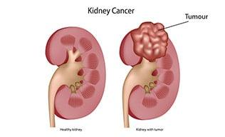 cancer sistem urinar human papillomavirus family