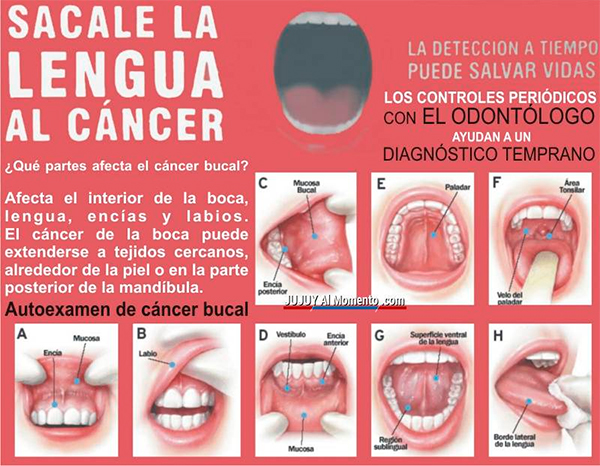 cancer bucal por mala higiene