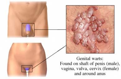 Hpv wart virus cervical cancer. Înțelesul