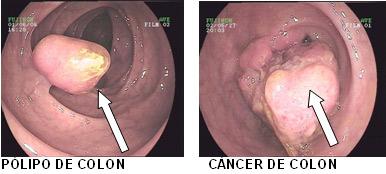 cancer de colon rectal