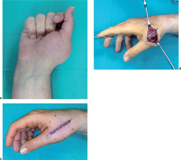 sarcoma cancer in hand