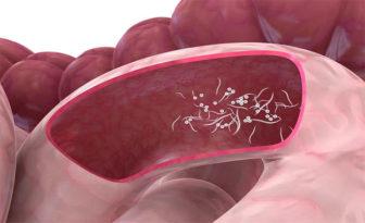 tratarea căii infecției cu helmint medicamente antihelmintice ieftine pentru oameni