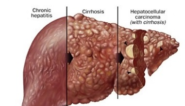 hepatic cancer hcc
