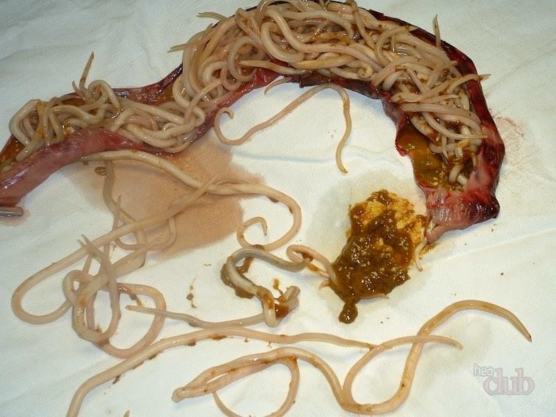 intraductal papilloma in chinese human papillomavirus icd 10