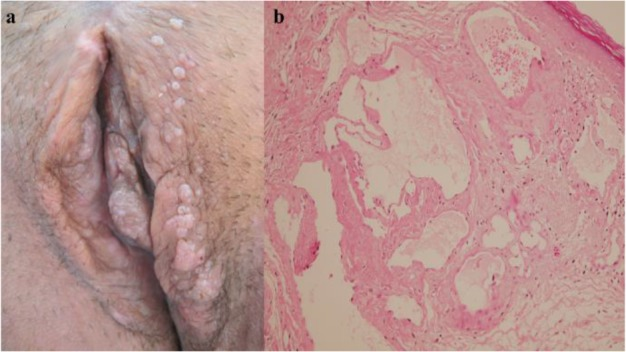 Vestibular papillomatosis suddenly. Curs Engleza Partea 2 transroute.ro | Heart | Artery
